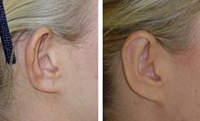 chirurgie-oreille-avant-apres-tunisie