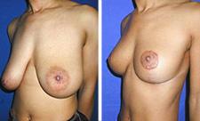 reduction-mammaire-avant-apres
